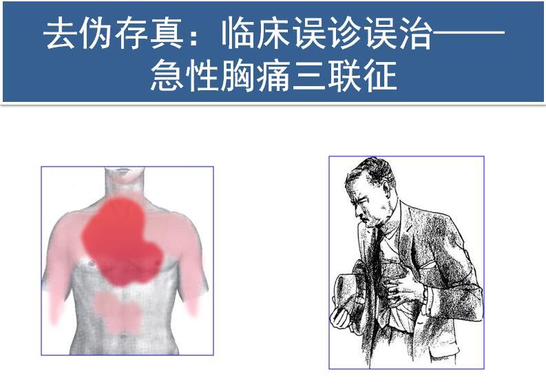 去伪存真:临床误诊误治——急性胸痛三联征